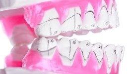 realizzazione protesi dentarie, protesi per studi dentistici, protesi mobili
