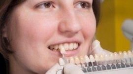 realizzazione denti, odontotecnici, protesi