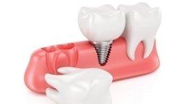 denti in zirconio, sostituzione denti mancanti, applicazione denti sintetici