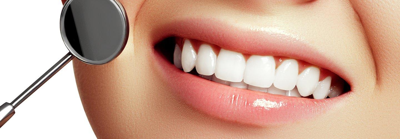denti sani donna e uno specchio di bocca dentista