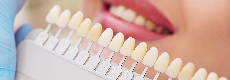 donna sorriso con denti sani sbiancamento