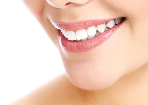 Primo piano del sorriso con i denti bianchi