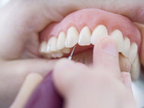 una protesi dentaria