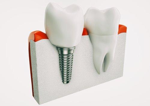 Implantologia con denti