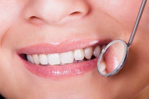 una donna sorridente con specchio circolare del dentista