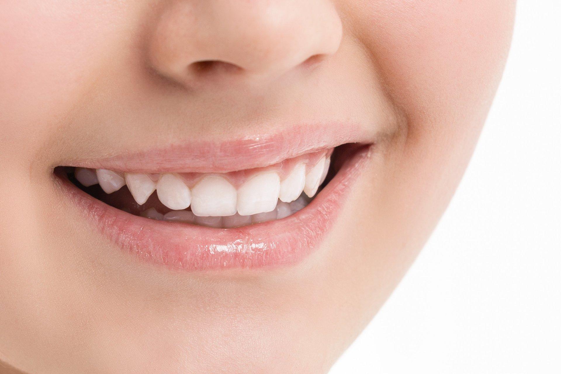 donna sorridente con i denti sani