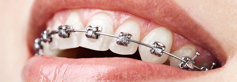 l'ortodonzia fissa