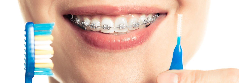 una donna con l'ortodonzia fissa