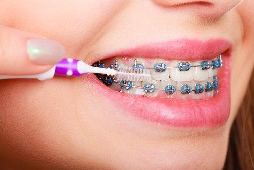giovane donna con un apparecchio per i denti