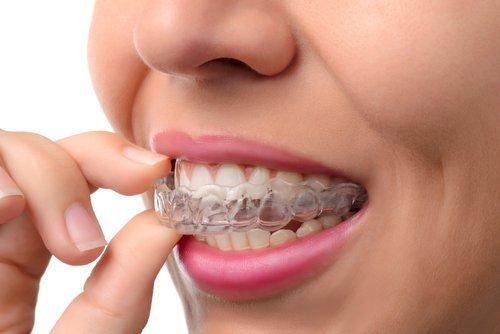 donna che indossa apparecchio silicone ortodontico
