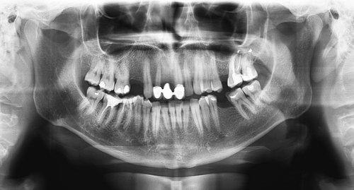 immagine panoramica dei raggi x dei denti
