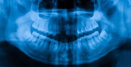 raggi x denti-azzurra