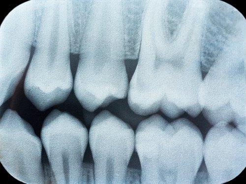 raggi x di un'arcata dentale