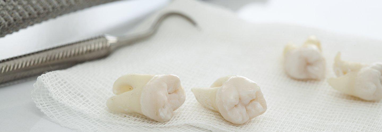 denti con strumenti per cure dentali