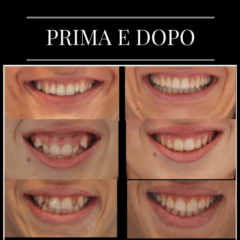 I nostri sorrisi