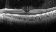 OCT  tomografia a coerenza ottica