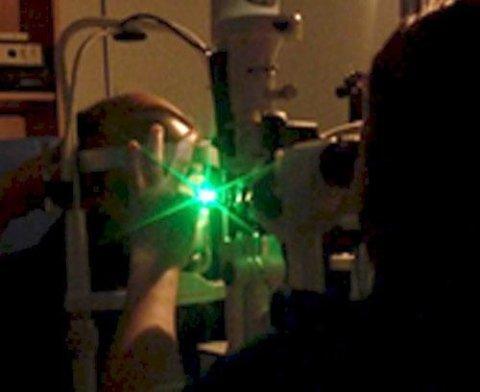 Laserterapia retinica (Argon Laser)