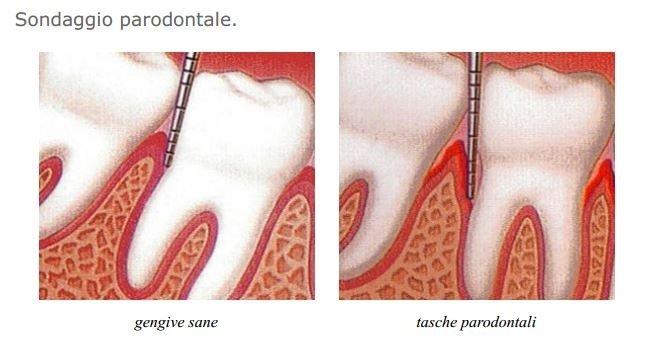 sondaggio parodontale
