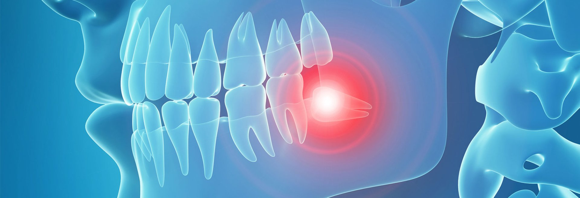 What Is Tmj And Can Braces Or Invisalign Fix It If My Jaw Hurts