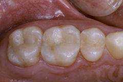 General Dentistry in Amherst, NY - Robert J Yetto DDS