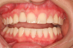 Invisalign Braces in Amherst, NY - Robert J Yetto DDS
