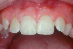 Cosmetic Dentist in Amherst, NY - Robert J Yetto DDS