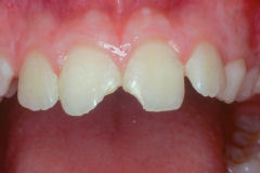 Cosmetic Dentist in Williamsville, NY - Robert J Yetto DDS