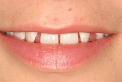 Before Porcelain Veneers in Amherst, NY - Robert J Yetto DDS