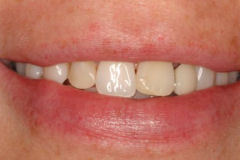 Crowns & Bridges in Amherst, NY - Robert J Yetto DDS