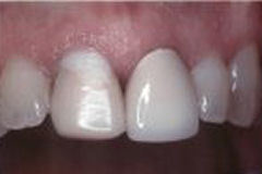 Ceramic Crowns in Williamsville, NY - Robert J Yetto DDS