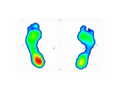 Impronta baropodometrica