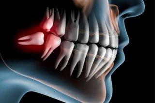 Chirurgia Odontostomatologica - Borgosesia - Vercelli