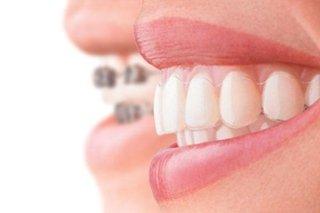 Ortodonzia e trattamento patologie ATM