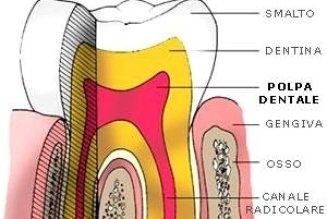 un'immagine raffigurante l'interno di un dente