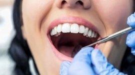 controllo delle carie, pulizia dei denti, controllo igiene orale