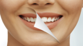 denti bianchi, estetica dentale, sbiancamento denti
