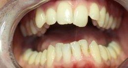 laser per odontoiatria