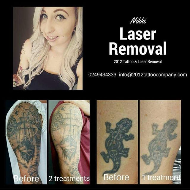 laser removal examples