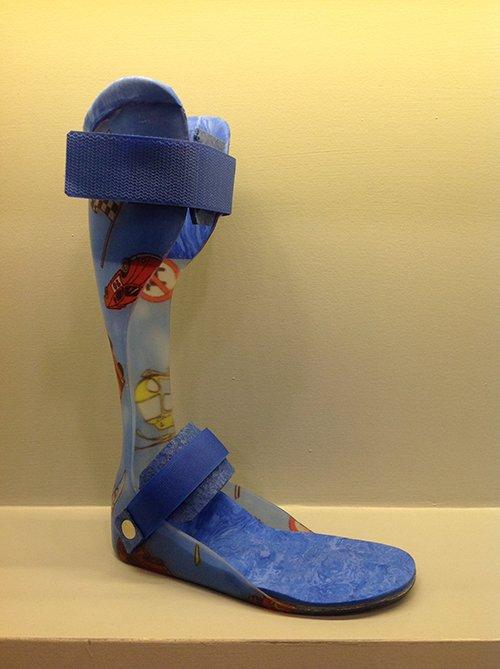 Protesi ortopedica a Milano
