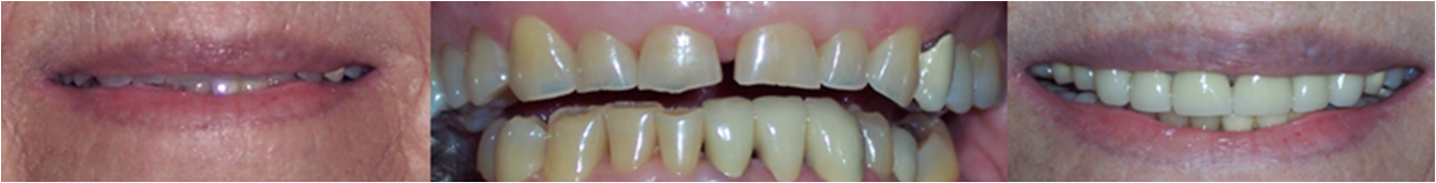 Top of the line dentistry in Kingman, AZ