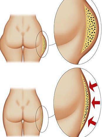 Disegno comparativo dei fianchi prima e dopo il trattamento anticellulite