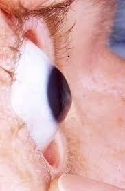 Occhio affetto da cheratocono