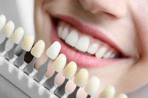 campione colori per lo sbiancamento dentale