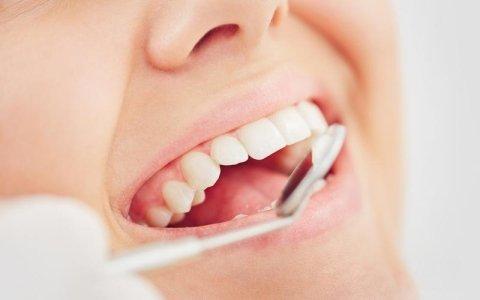 Visite igiene orale