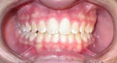 corretto posizionamento dentale