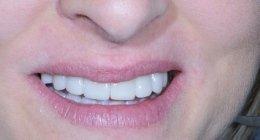 dopo- applicazione faccette dentali