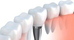 ortodonzia estetica, check-up odontoiatrico, sbiancamento con laser