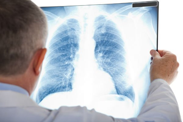 Inquadratura di spalle un medico che osserva una radiografia toracica