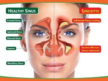 Chronic sinusitis caused by fungus