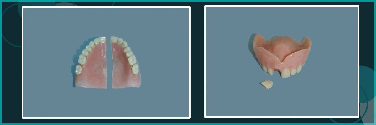 belmont denture clinic rapairs and relines